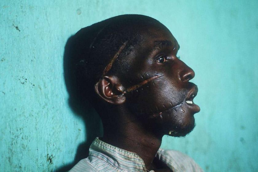 Чоловік із племені тутсі демонструє сліди катувань